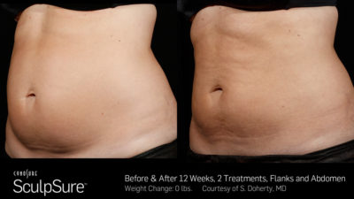 Image | SculpSure | Before & After