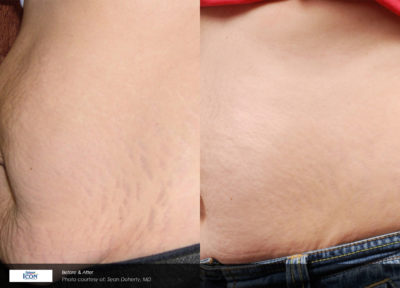 Stretch Marks Treatment Boca Raton, FL