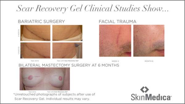 SkinMedica-Scar-Recovery-Gel