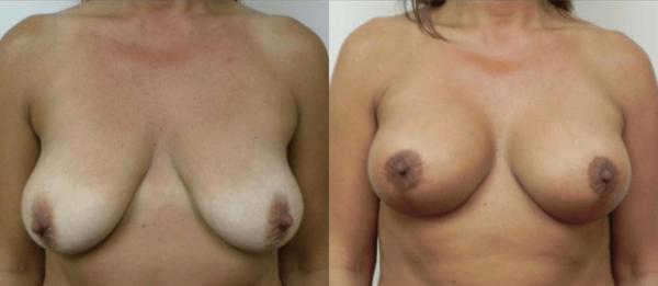 Breast Lift Boca Raton