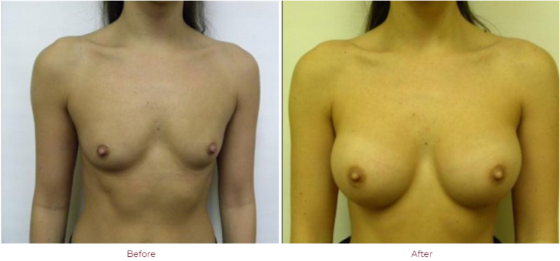 Breast Augmentation Boca Raton, FL