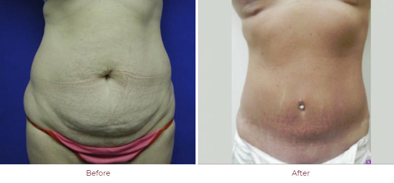 Image | Abdominoplasty | Before & After