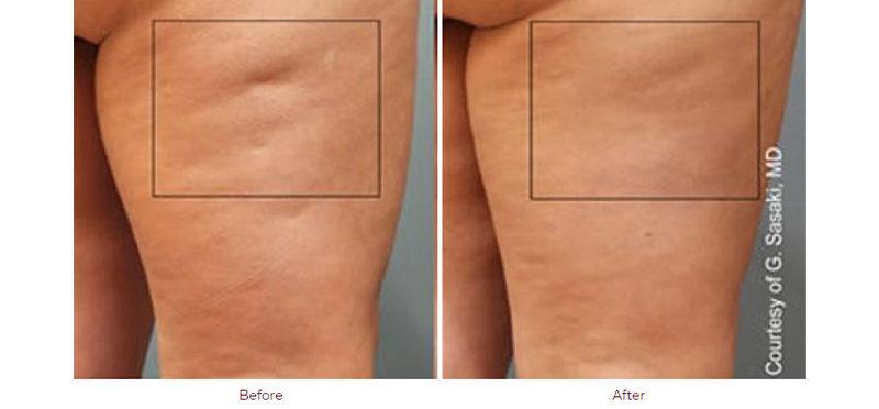 Image | Cellulaze | Before & After