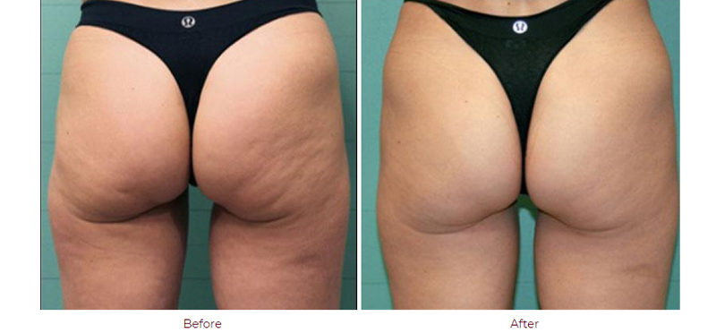 Exilis Therapy Skin Tightening Boca Raton, FL