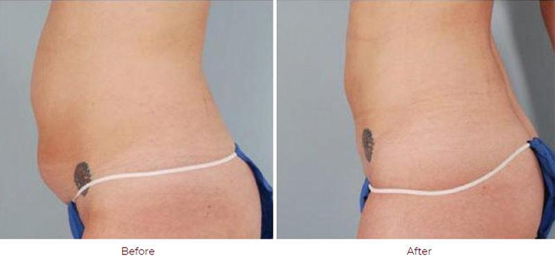 Liposuction Boca Raton FL