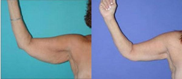 Arm Contouring Boca Raton