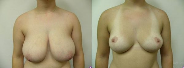 Breast Reduction Boca Raton