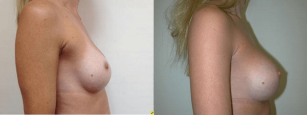 Breast Augmentation Boca Raton