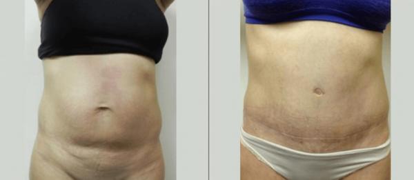Abdominoplasty Boca Raton