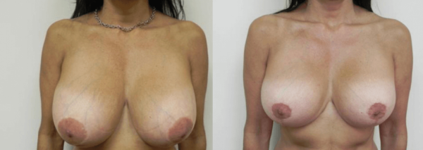 Boca Raton Breast Reduction