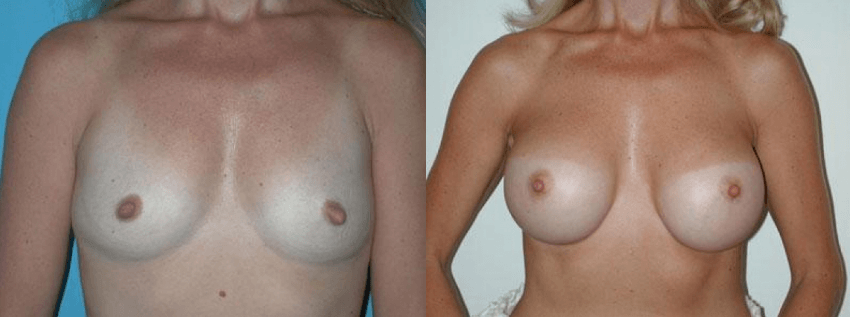 Breast Augmentation Surgery Boca Raton