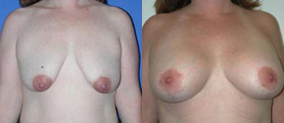 Breast lift Boca Raton