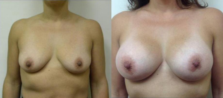 Boca Raton Breast Augmentation