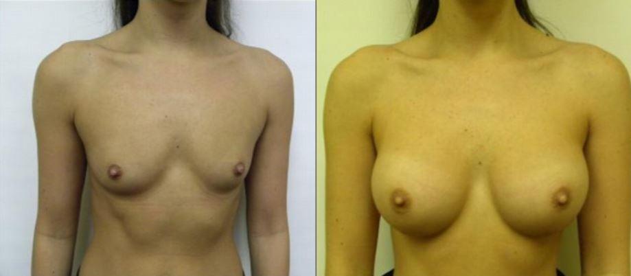 Breast Augmentation Boca Raton