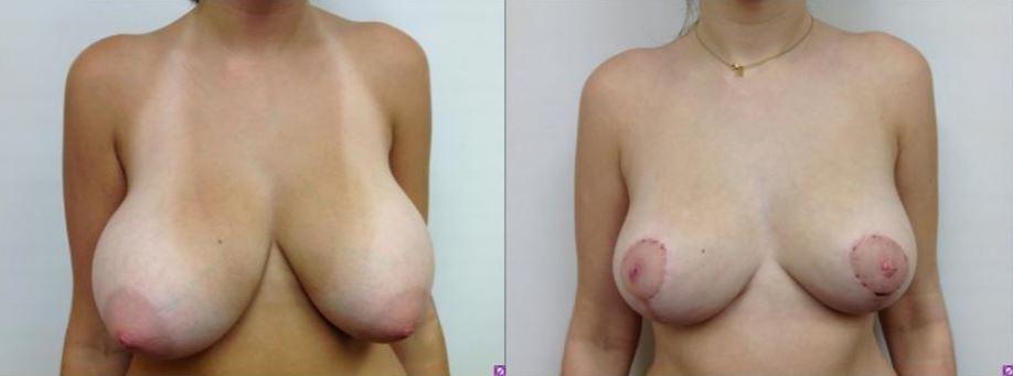 Breast Reduction Boca Raton