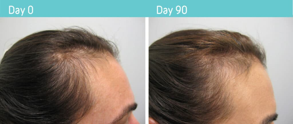 PRP Hair Treatment Before & After