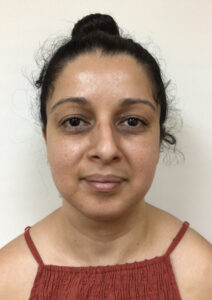 Chin & Neck Liposuction - After Picture - Front View