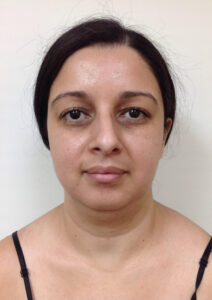 Chin & Neck Liposuction - Before Picture - Front View
