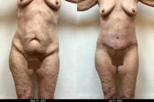 Total Lower Body Lift - Front - Female Age 66