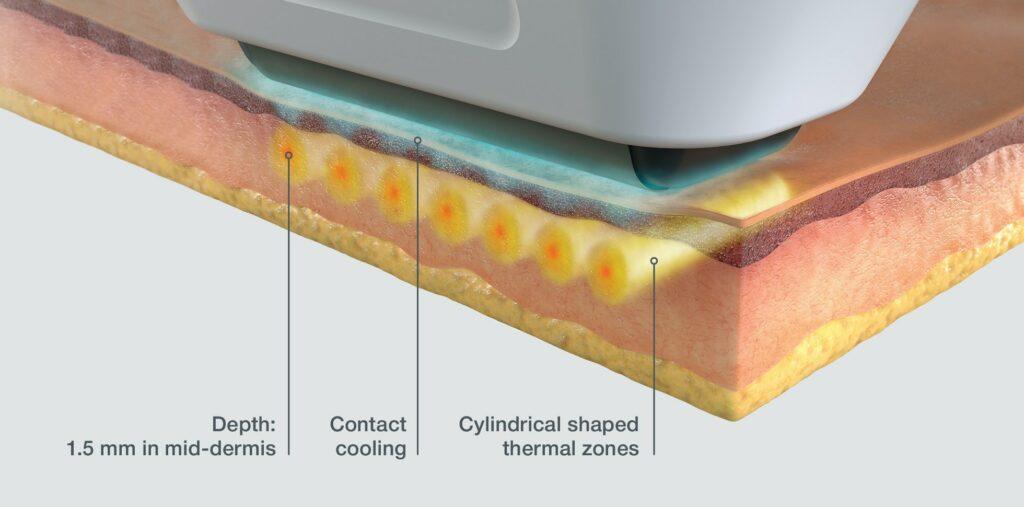 Sofwave Skin Image